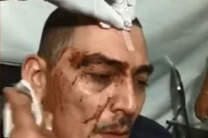 José Manuel Figueroa sufre accidente durante su espectáculo (+VIDEOS)
