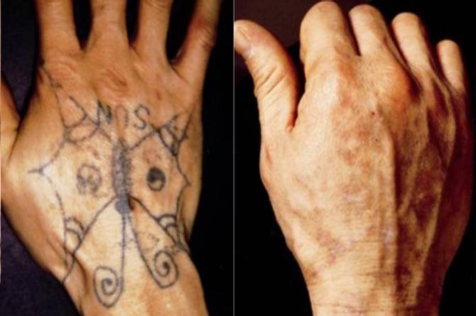 Checa como puedes eliminar un tatuaje sin marcas